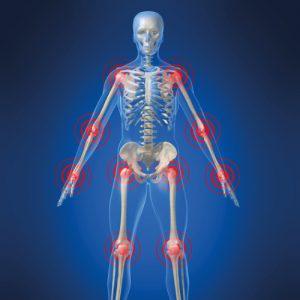 Douleurs articulaires et musculaires